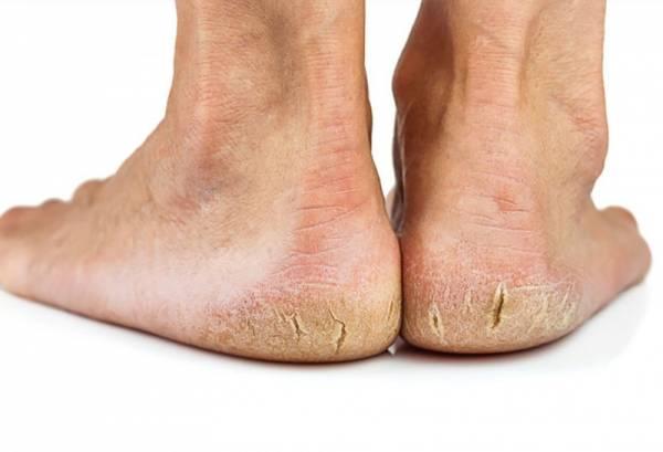 heels_